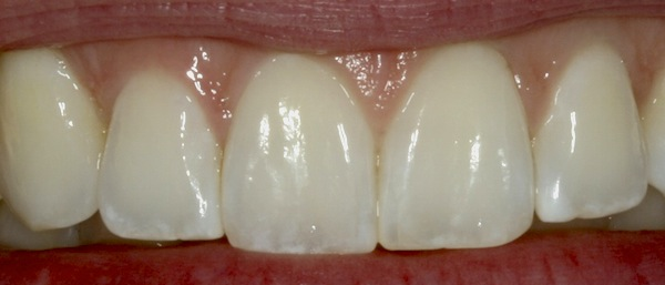 White Spots on Teeth